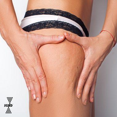 Cellulite: cause comuni, prevenzione e rimedi